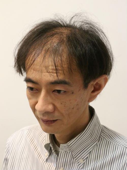 男性の薄毛の大部分を占めているAGAは、生え際から頭頂部にかけての範囲に集中しているのが特徴です。これは、この部分の毛根に、薄毛の原因物質DHTの生産に関与して